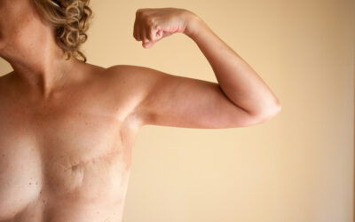 The unkindest cut: mastectomies are hidden from history